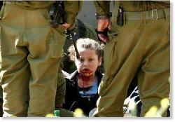 Палестинская девочка по имени Nesreen Hash'hash истекает кровью после того, как её ударил в лицо израильский солдат